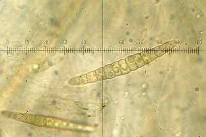 spore de Leptosphaeria acuta, 6 mars 2015, cliché André Lantz
